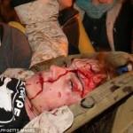 scott-olsen-wounded